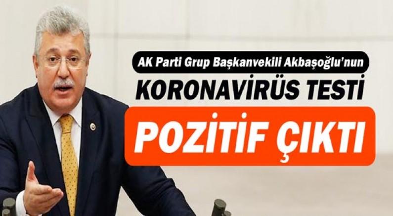 Ak Parti Grup Başkanvekili Akbaşoğlu'nun koronavirüs testi pozitif çıktı!