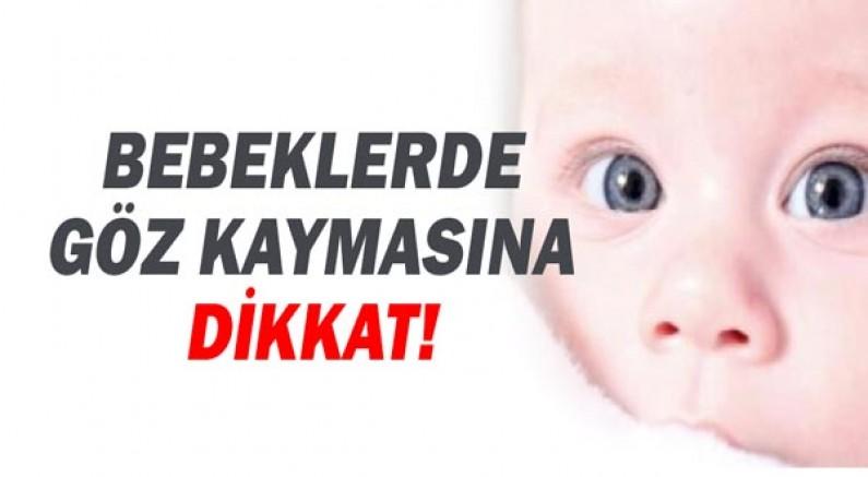 Bebekler de Göz Kaymasına Dikkat!