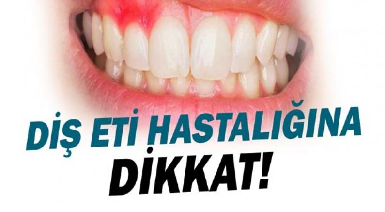 Diş Eti Hastalığına Dikkat!