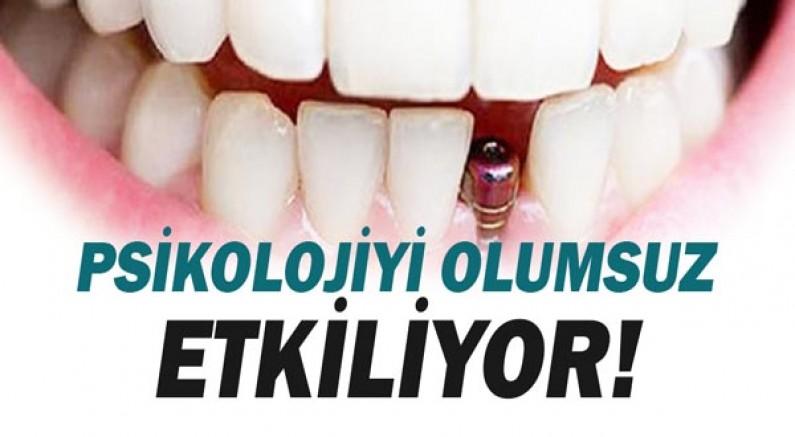 Diş Kayıpları Psikolojiyi Olumsuz Etkiliyor!
